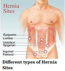 Twenty questions about Hernia that you wish you had reliable answers