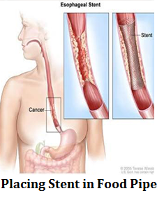 q11-placing-stent-in-food-pipe