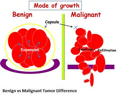 2-benign-vs-malignant-tumor-difference-new