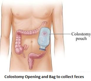 Thank God I have No Colostomy! Says A Smiling Rectum Cancer