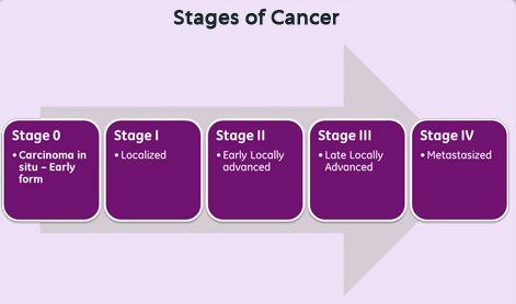 5-cancer-staging