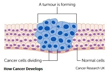 1-how-cancer-develops