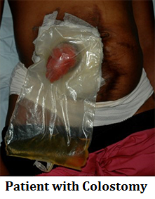 patient-with-colostomy