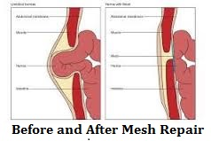 before-and-after-mesh-repair