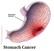 q12-stomach-cancer