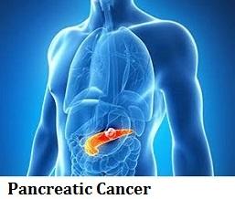 q18-pancreatic-cancer