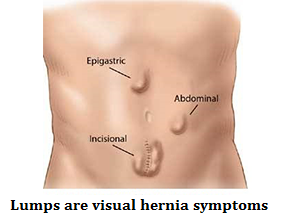 q2-lumps-are-visual-hernia-symptoms