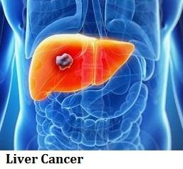 q21-liver-cancer