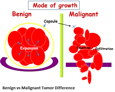2-benign-vs-malignant-tumor-difference-new