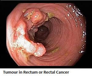 2-tumour-in-rectum-or-rectal-cancer