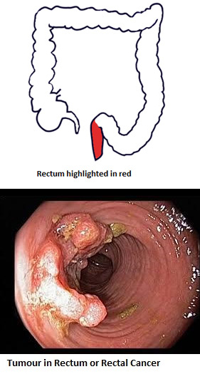 3-colostomy-opening-and-bag-to-collect-feces