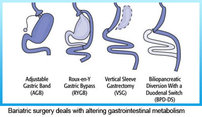 2-bariatric-surgery-deals-with-altering-gastrointestinal-metabolism
