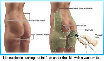 1-liposuction-is-sucking-out-fat-from-under-the-skin-with-a-vacuum-tool-1